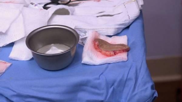 جراحی-دم
