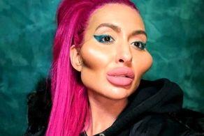 چهره وحشتناک زن جوان بعد تزریق ژل گونه و زاویه فک!+ عکس