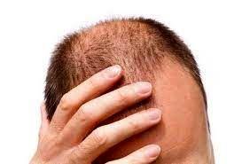 آشنایی با روش درمان ریزش مو پس از بیماری کرونا