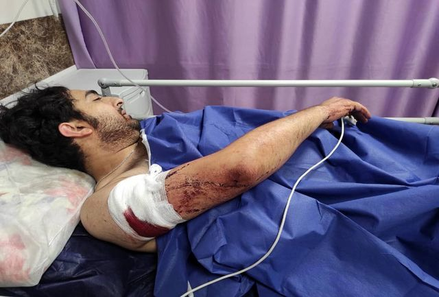 شبیخون زورگیران به یک عکاس خبرنگار/ زخمی شدن با 21 ضربه چاقو