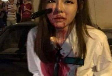 زورگیر پست فطرت چاقواش را داخل صورت دختر جوان فرو کرد/ عکس+18