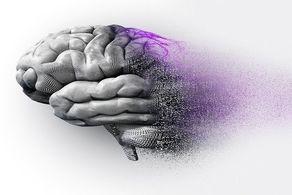 کشف روشی جدید برای متوقفکردن آلزایمر