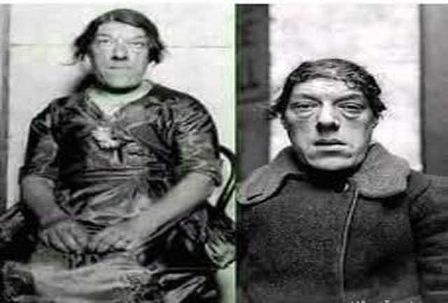 بدبختیهای عجیب زشت ترین زن جهان+ عکس