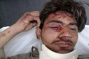 سقوط هولناک دانش آموزی که به دنبال اینترنت بود+ عکس