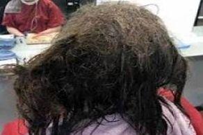این دختر از موهایش شپش میبارد+ عکس
