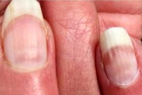 سرطان پوست را از روی ناخنها شناسایی کنید