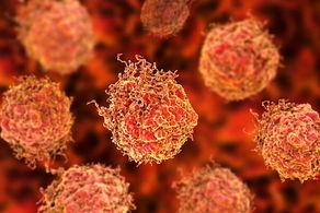 علایم خاموش سرطانها را جدی بگیرید