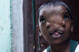 تصاویر دردناک از دختری که دوتا دماغ دارد!+ عکس