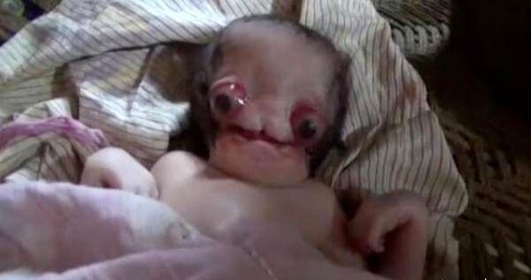 تولد زشت ترین و ترسناکترین نوزاد دنیا!+عکس
