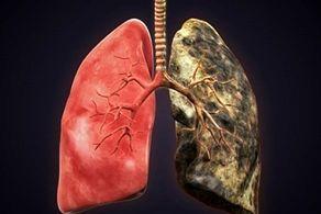 از علایم مرگبارترین سرطان جهان چه میدانید؟