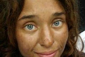 کشف دختری شبیه گوزن از جنگل! +عکس