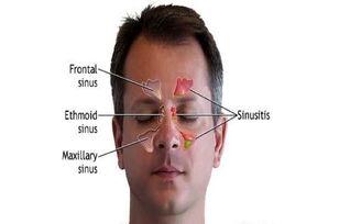 بهترین راه تشخیص عفونت سینوسها از کرونا