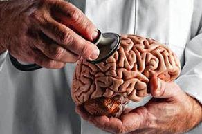 کشف راز چرایی حمله کرونا به مغز
