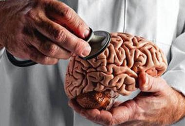 اختلال جدی مغزی در مبتلایان به کرونا!