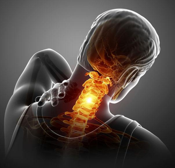 دلایل گردن درد و 10 درمان خانگی