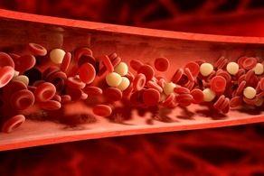 با این روش جالب از چربی خون پیشگیری کنید